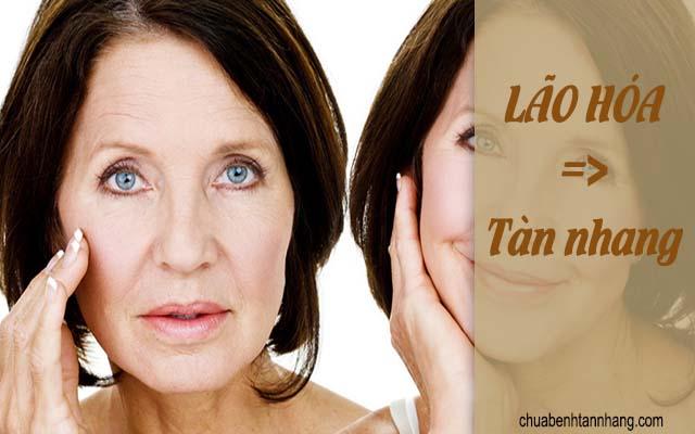 lão hóa là nguyên nhân gây tàn nhang trên da