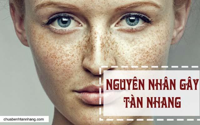 nguyên nhân gây tàn nhang trên da