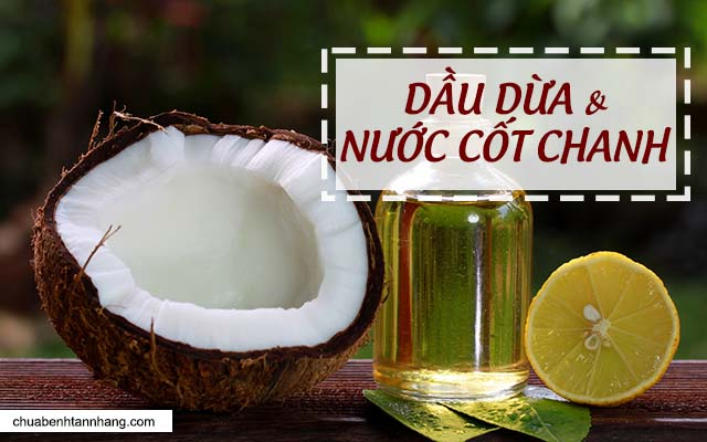 trị tàn nhang bằng dầu dừa và nước cốt chanh