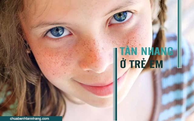 Nguyên nhân gây tàn nhang ở trẻ em