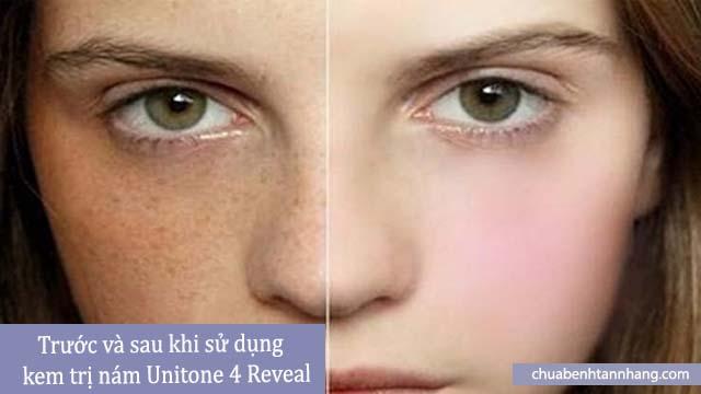 kem trị nám unitone 4 reveal trước và sau sử dụng