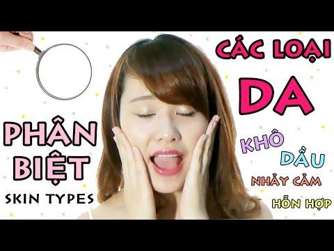 can-phan-biet-tri-nam-cho-da-kho-va-da-dau-copy