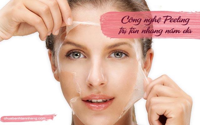Công nghệ Peeling trị tàn nhang nám da