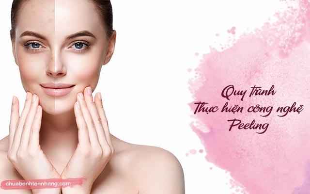 Quy trình thực hiện công nghệ Peeling trị tàn nhang nám da