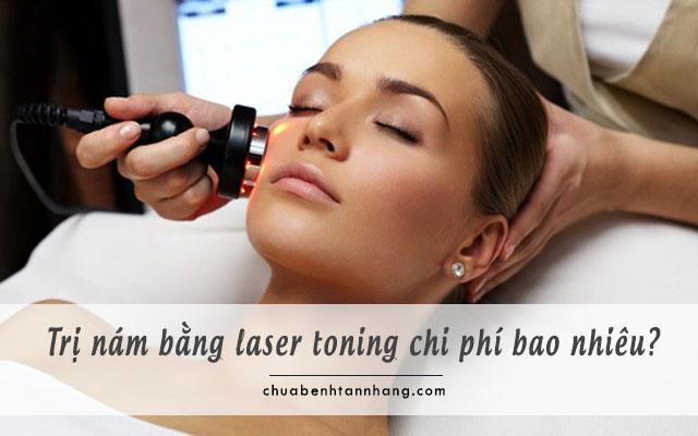 trị nám bằng laser toning