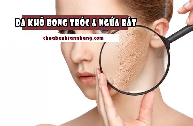 Lạm dụng thuốc chữa tàn nhang khiến da khô