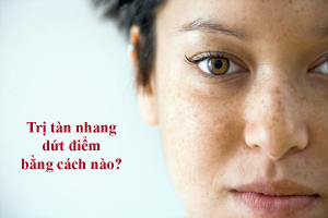 nam-tan-nhang-tai-phat-sau-dieu-tri-phai-lam-sao