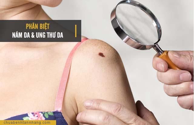 Phân biệt nám da và ung thư da