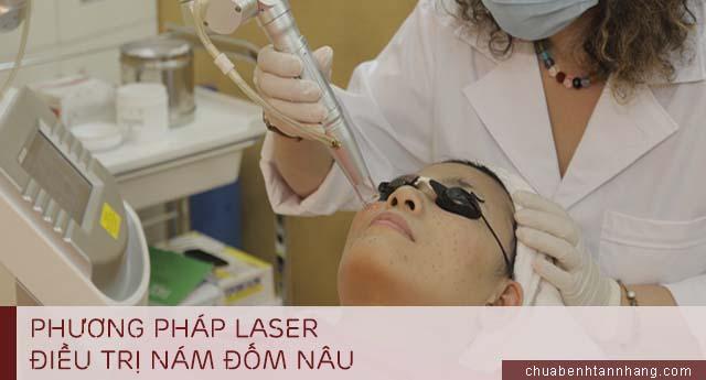 nám đốm nâu điều trị bằng phương pháp laser