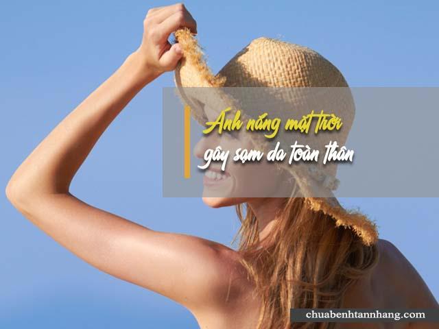 ánh nắng mặt trời là Nguyên nhân bị sạm da toàn thân