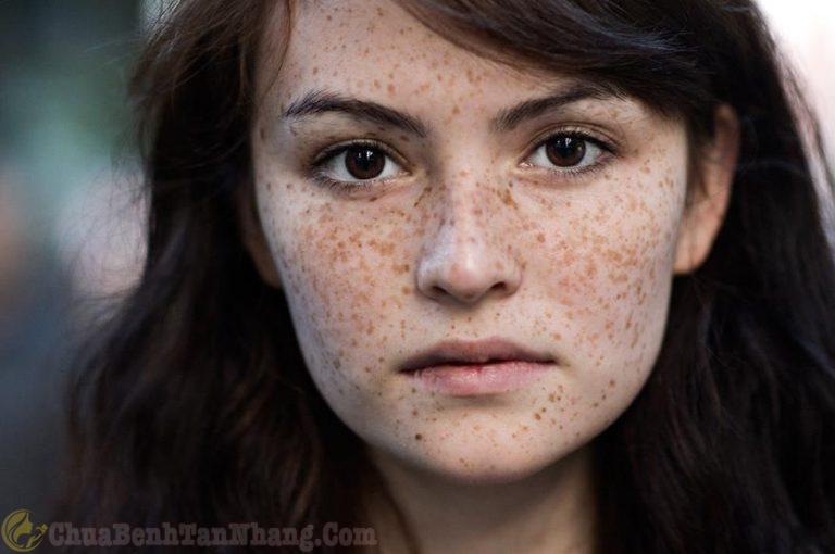 Làn da mặt bị nám