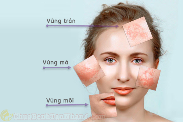 Tình trạng nám xuất hiện trên da mặt