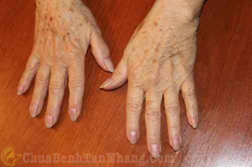 Da tay xuất hiện những đốm nâu