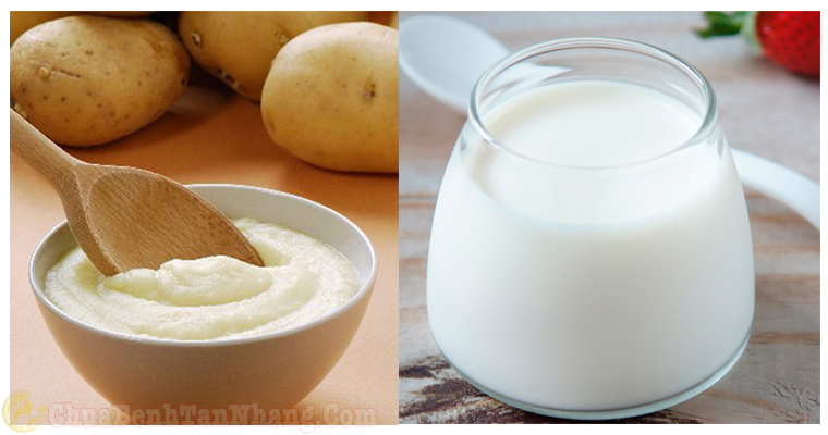 Khoai tây và sữa chua trị đốm nâu trên da tay
