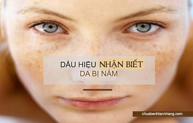 dấu hiệu nhận biết da mặt bị nám