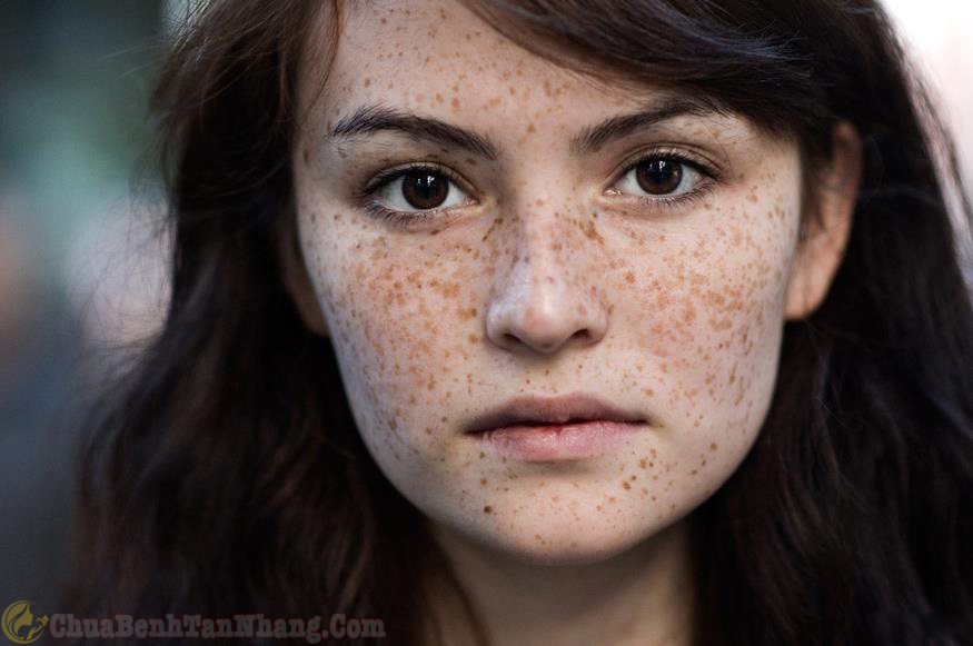 Tàn nhang xuất hiện nhiều trên gương mặt