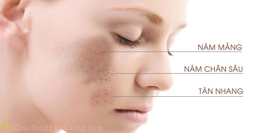 Phân biệt tàn nhang và nám da