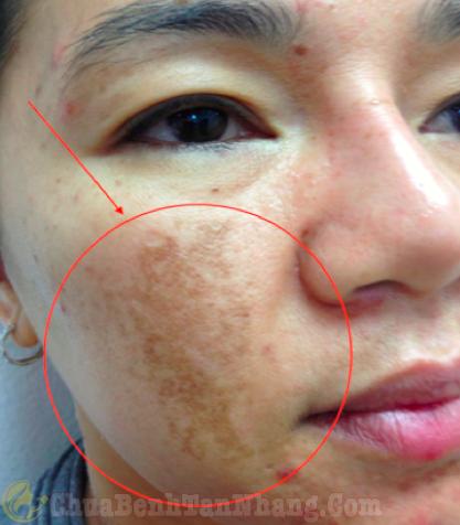 Mặt bị nám da
