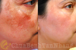 Trước và sau điều trị nám da