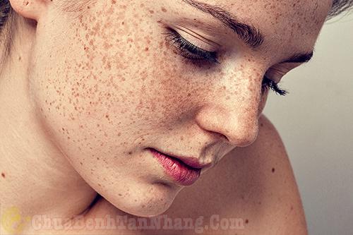 Mặt bị nổi nhiều đốm nâu do tàn nhang