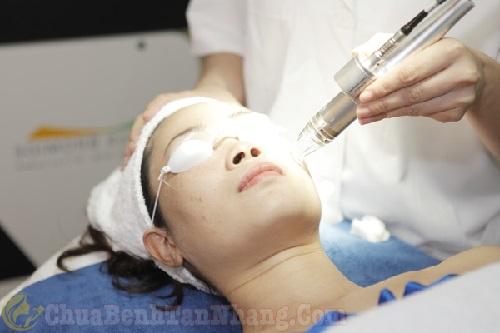 Công nghệ Laser điều trị nám
