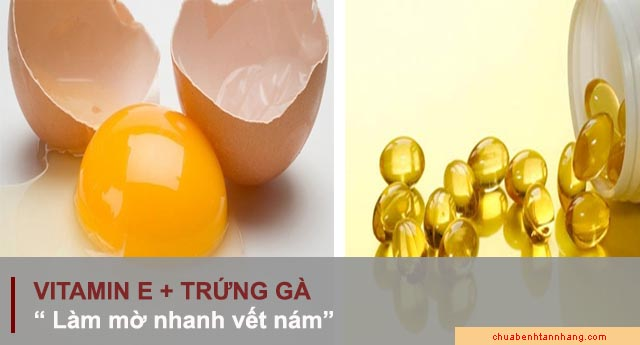 trị nám bằng vitamin e kết hợp với trứng gà