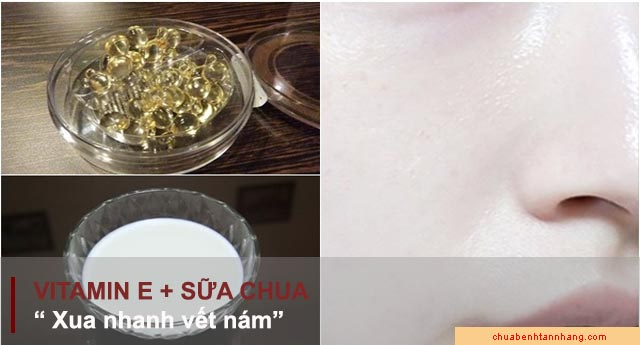 trị nám da bằng vitamin e kết hợp với sữa chua