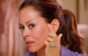Nám da mặt ở phụ nữ độ tuổi 40