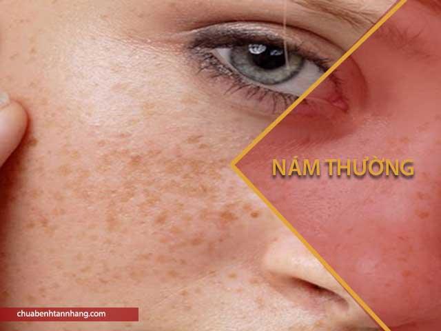 dấu hiệu nhẹ của nám da là nám thường