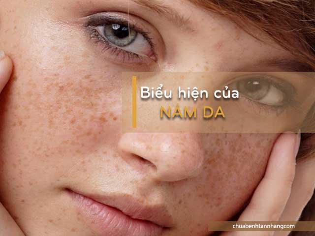 những biểu hiện của nám da