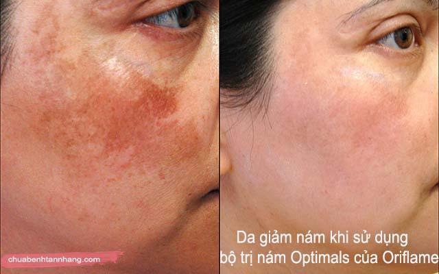bọ trị nám optimals của oriflame