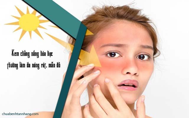 kem chống nắng trị sạm da belli khắc phục được tình trạng nóng rát ở kem chống nắng hóa học thông thường