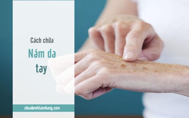 cách trị nám da tay hiệu quả