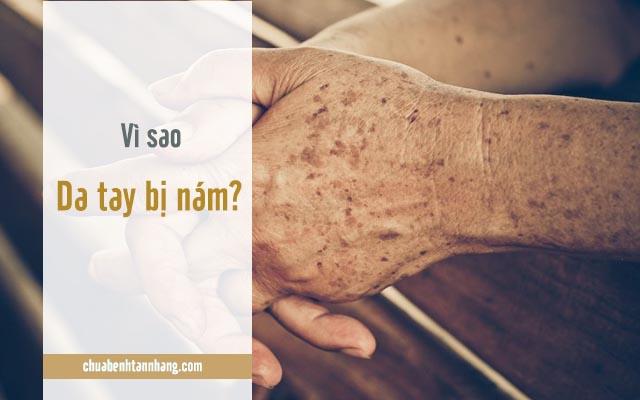 nguyên nhân gây nám da tay