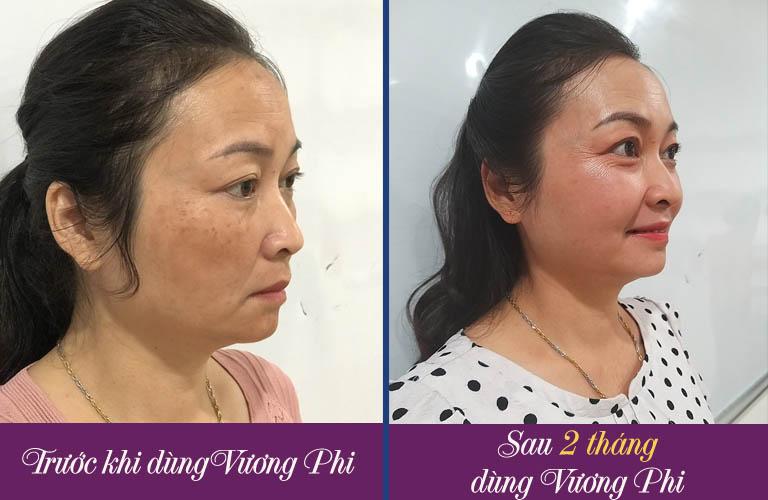 Hình ảnh trước và sau điều trị nám của cô Hồng Vân